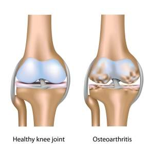 Osteoarthritis-of-Knee-Joint-300x300